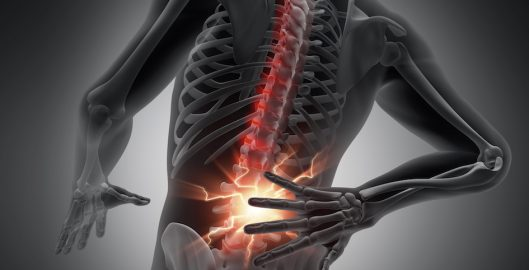 Back Pain & Bulging Disc
